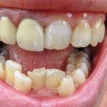 How Poor Dental Care Can Affect Your Health in Multiple Ways